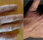 diseased hand improved after using Renu28