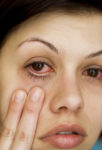 young woman showing irritated eye